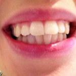 Teeth Whitening - Polished Whitening - After