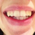 Teeth Whitening - Polished Whitening - Before